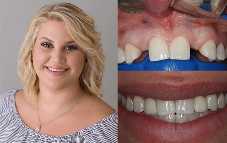 Dental Implant Oshawa