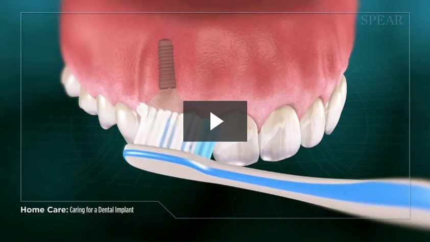 Caring for a Dental Implant