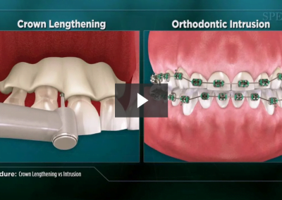 Crown Lengthening vs Intrusion