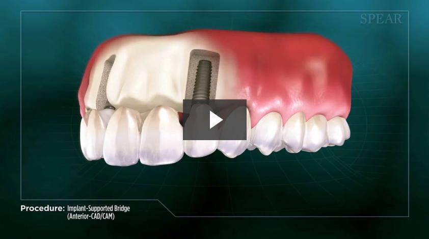 Implant-Supported Bridge (Anterior- CAD/CAM)