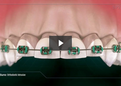 Orthodontic Intrusion