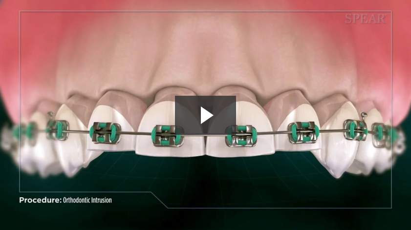 Orthodontic Intrusion
