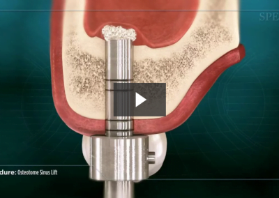Osteotome Sinus Lift