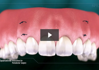 Post-Operative Instructions for Periodontal Surgery
