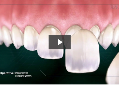 Post-Operative Instructions for Permanent Veneers