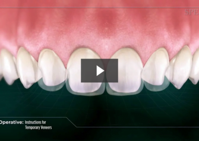 Post-Operative Instructions for Temporary Veneers