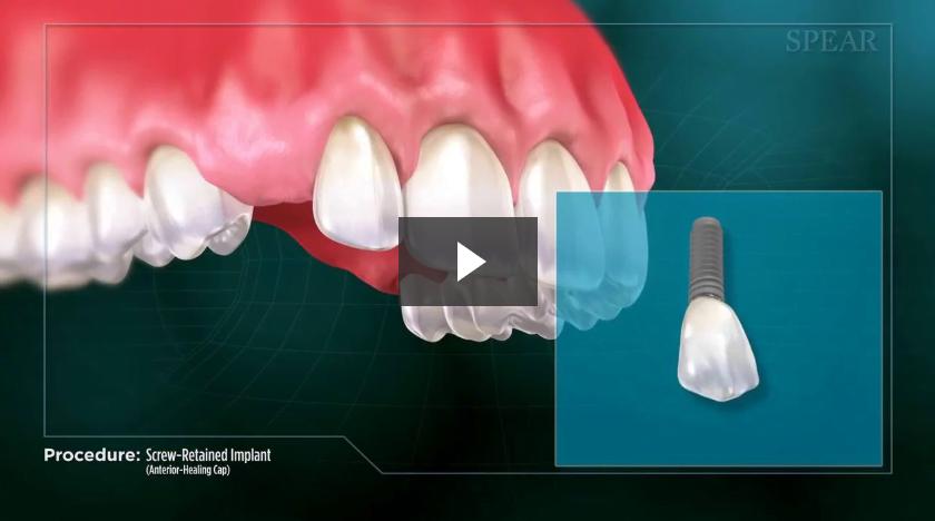 Screw-Retained Implant (Anterior- Healing Cap)