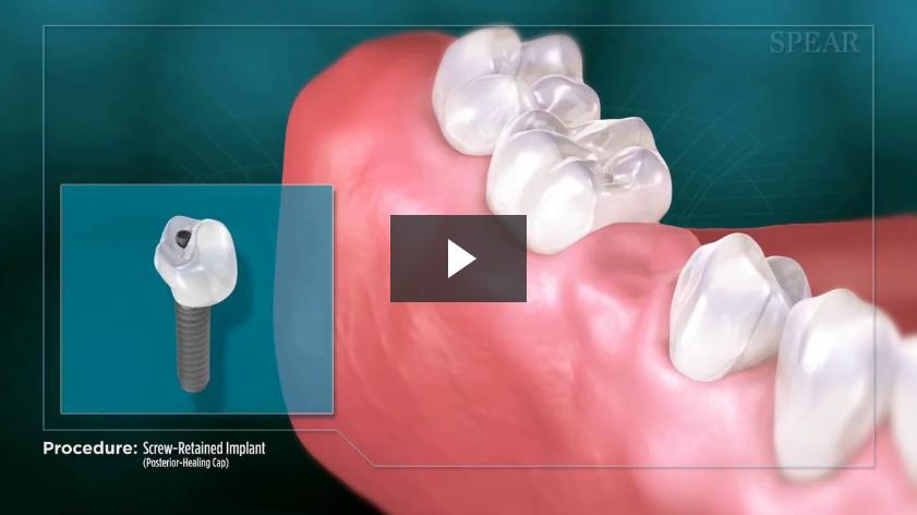 Screw-Retained Implant (Posterior- Healing Cap)