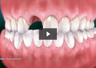 Trauma- Avulsed Tooth