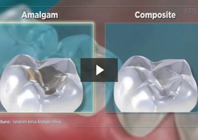 Composite Versus Amalgam Filling
