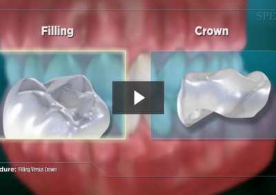 Filling Versus Crown (Impression)