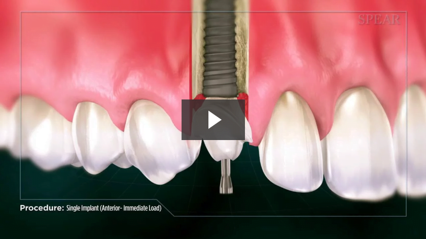 Single Implant (Anterior- Immediate Load)